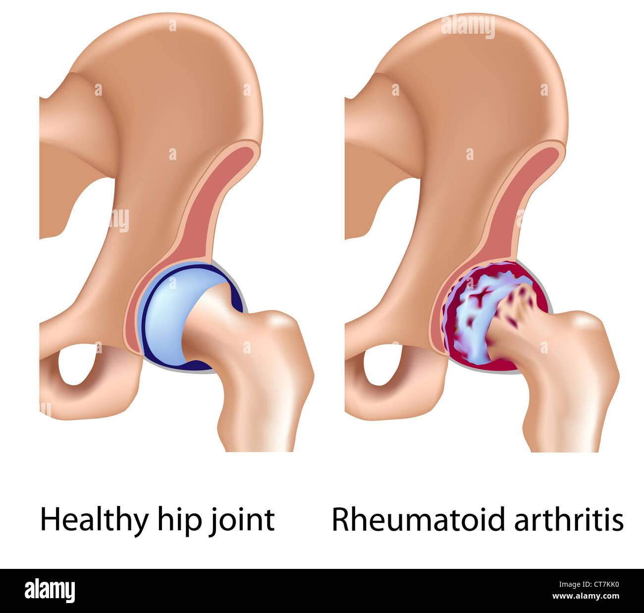 Rheumatoide Arthritis des Hüftgelenks Stockbild