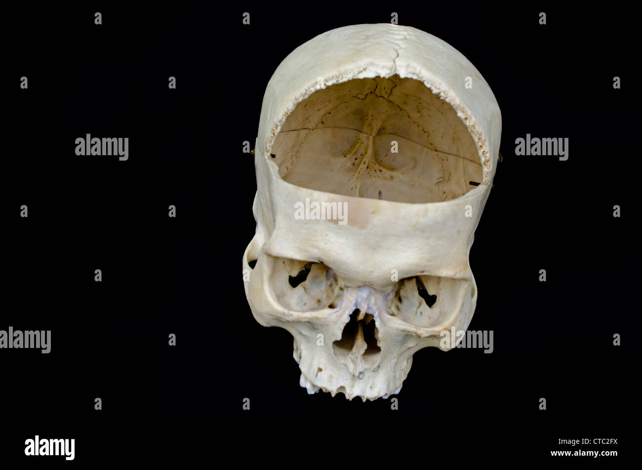 Frontal Bone Stockfotos & Frontal Bone Bilder - Alamy