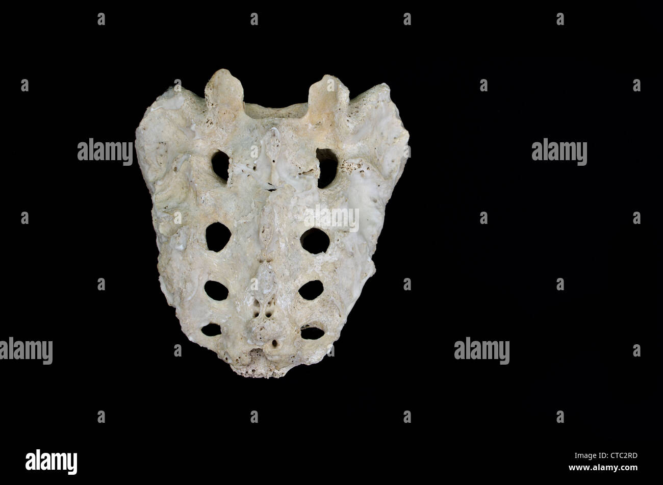 Menschliche Knochen - Kreuzbein, hintere Ansicht / dorsalen ...