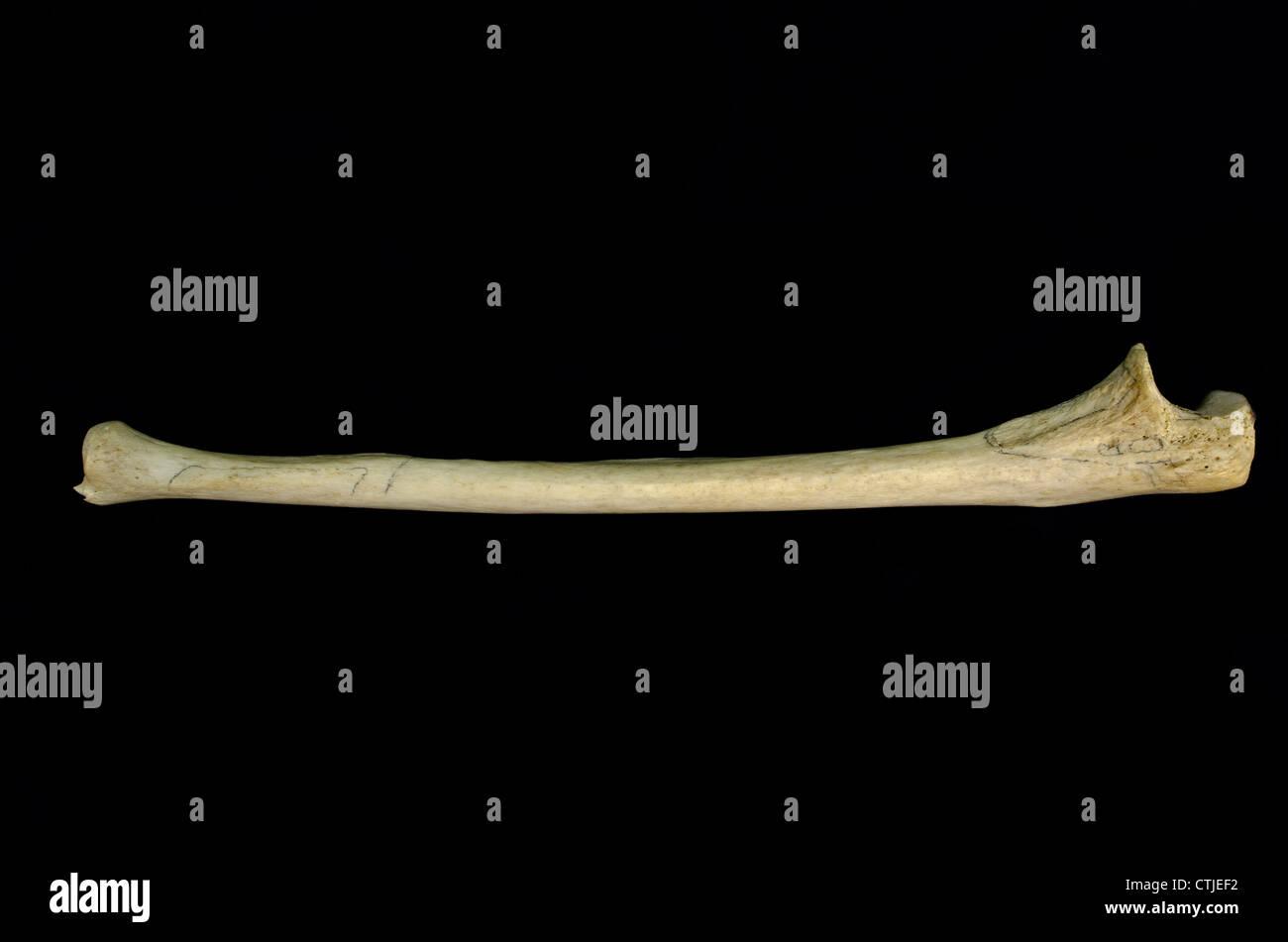 Menschliche Knochen - Elle (Ulna) (rechte Seite - medialen Fläche ...