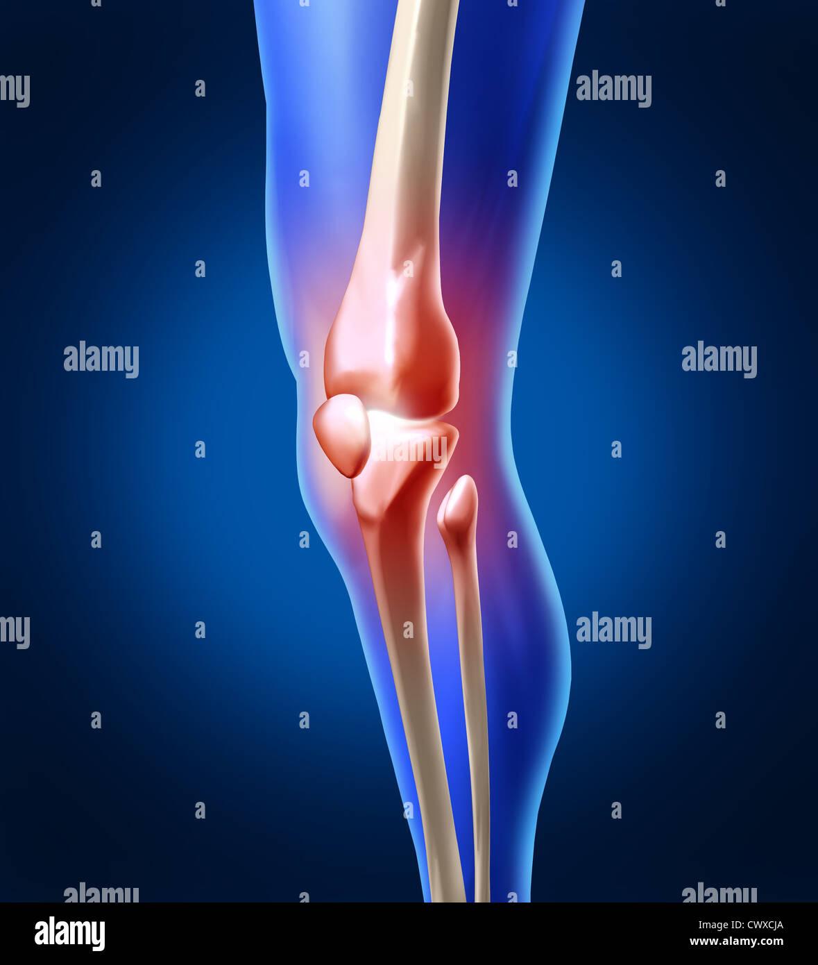 Schmerzen im menschlichen Knie mit der Anatomie von einem Skelett ...