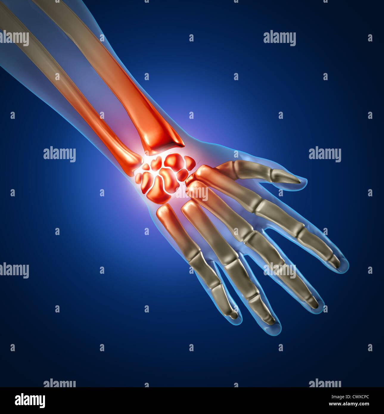 Menschliche Hand und Handgelenk Schmerzen durch Arthritis und Sport ...