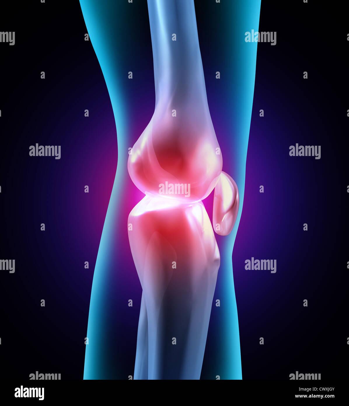 Gelenkbeschwerden und menschlichen Gelenkschmerzen als eine ...