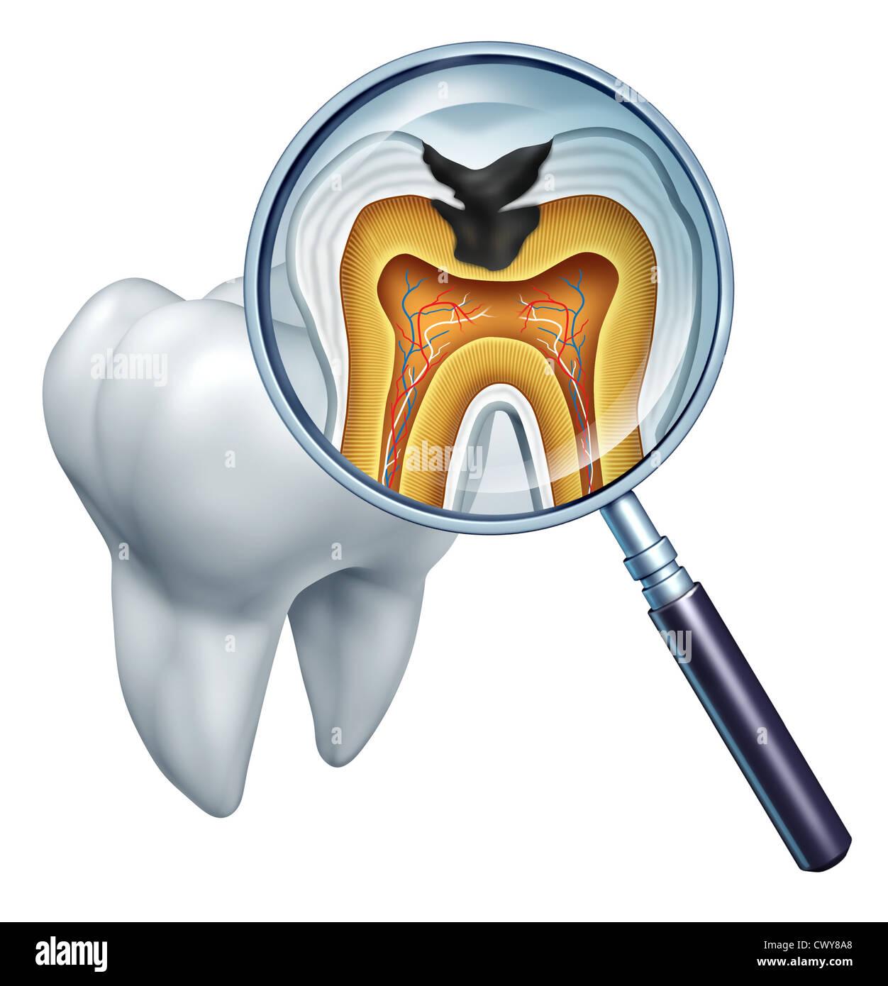 Zahn-Hohlraum hautnah und Hohlräume Symbol zeigt eine Lupe mit einem ...