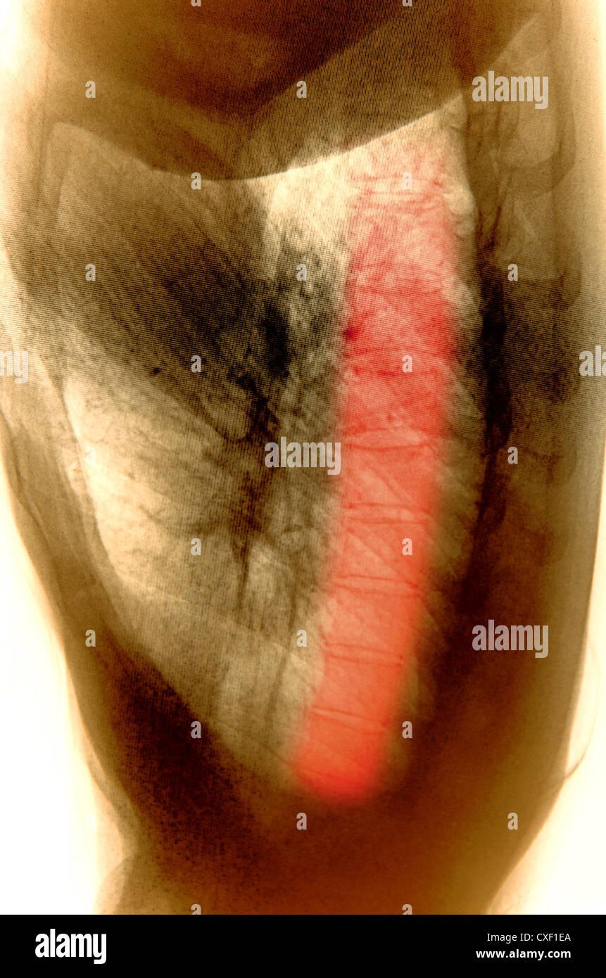x-ray menschlicher Muskel Stockfoto, Bild: 50732258 - Alamy