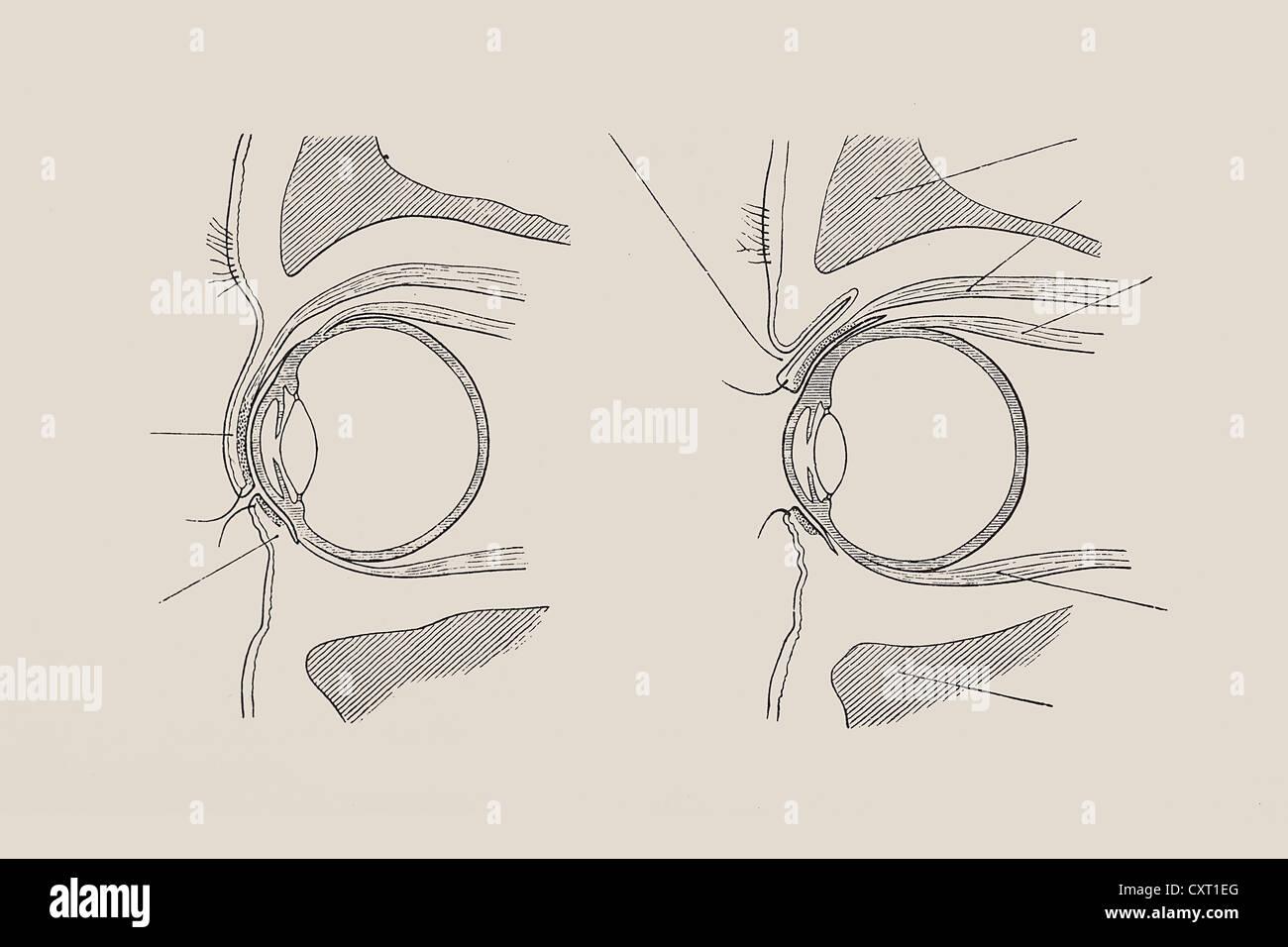 Schnittansicht des menschlichen Auges, anatomische Abbildung ...