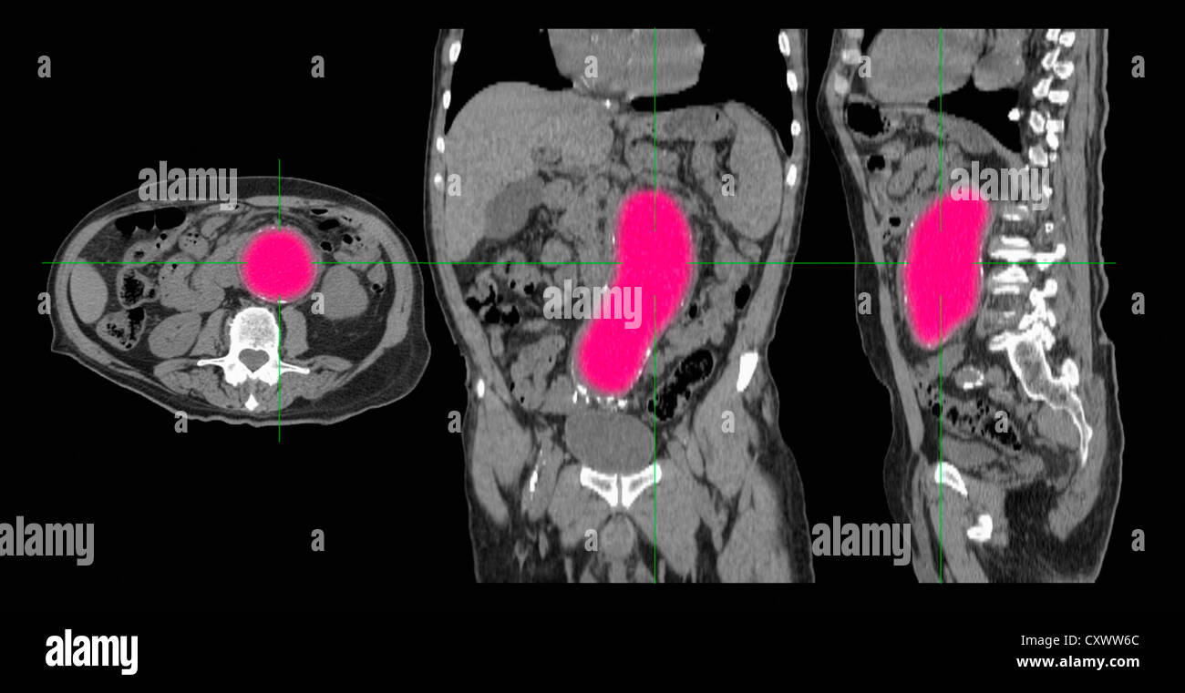 CT-Scan von einem Aortenaneurysma Stockfoto, Bild: 50970372 - Alamy