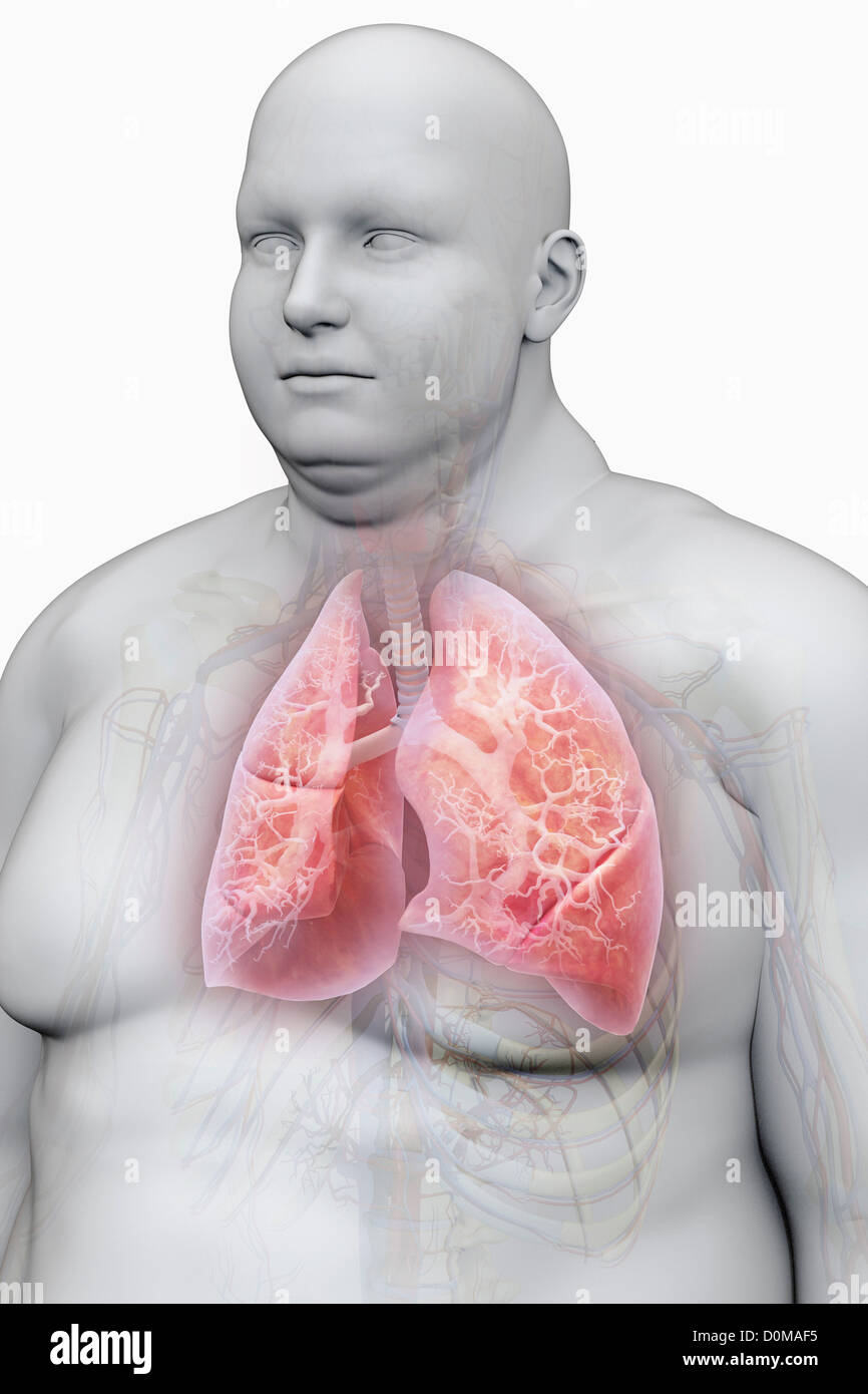 Human Lungs Layered Over Overweight Stockfotos & Human Lungs Layered ...