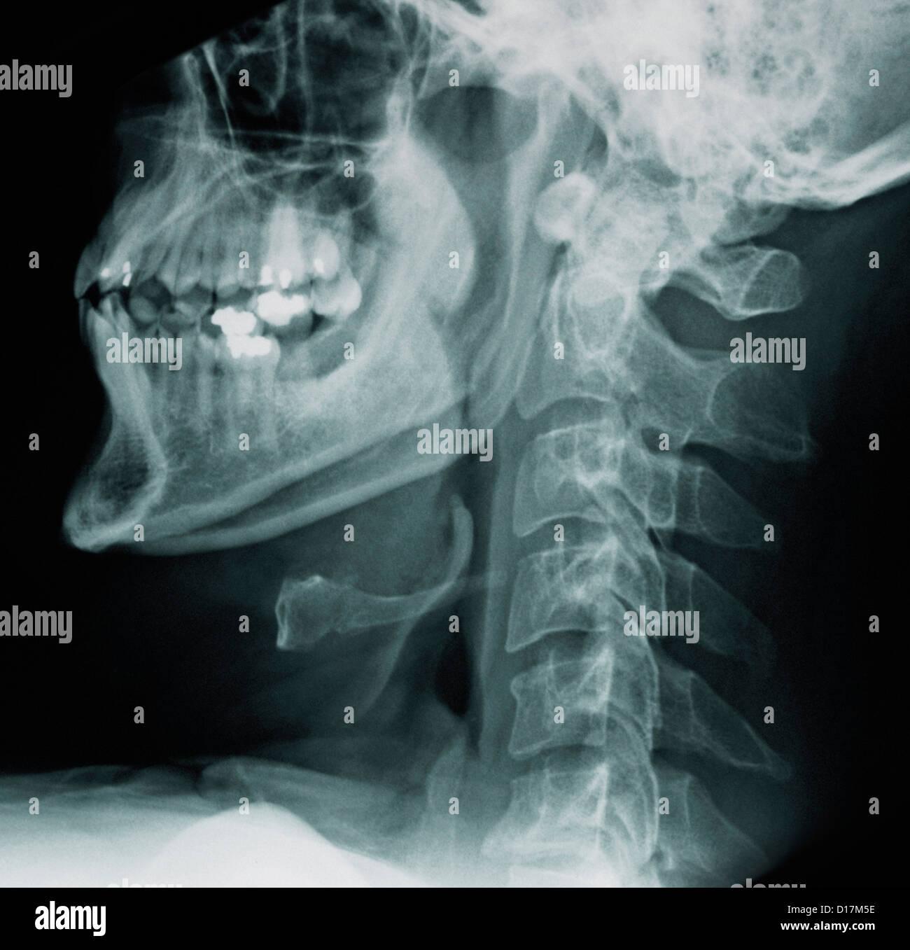 Neck X Ray Of Cervical Vertebrae Stockfotos & Neck X Ray Of Cervical ...
