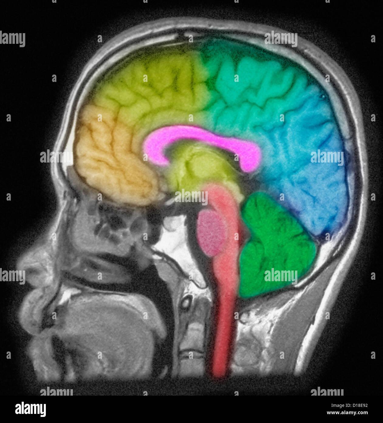 MRI des Kopfes zeigt Hirnstrukturen Stockfoto, Bild: 52432606 - Alamy