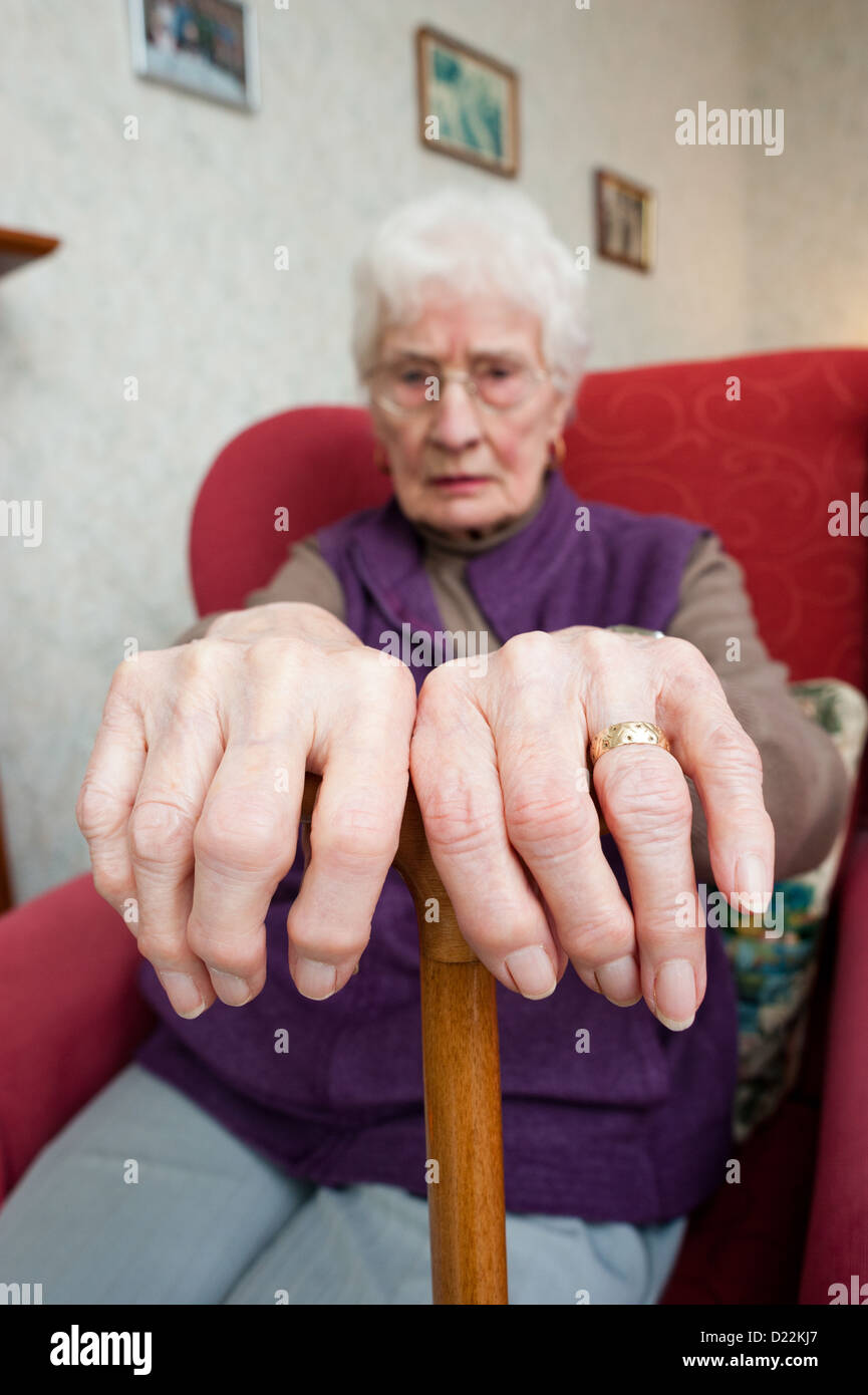 Eine alte Frau mit Arthrose Stockbild
