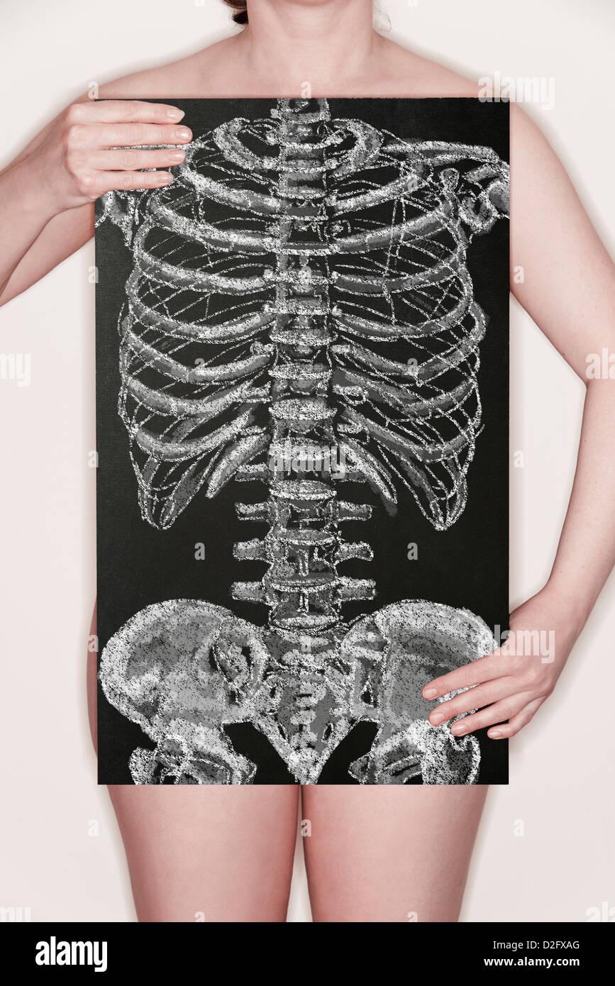 Frau hält eine Tafel mit einer Illustration von Skelett Torso in Kreide drauf gezogen Stockbild