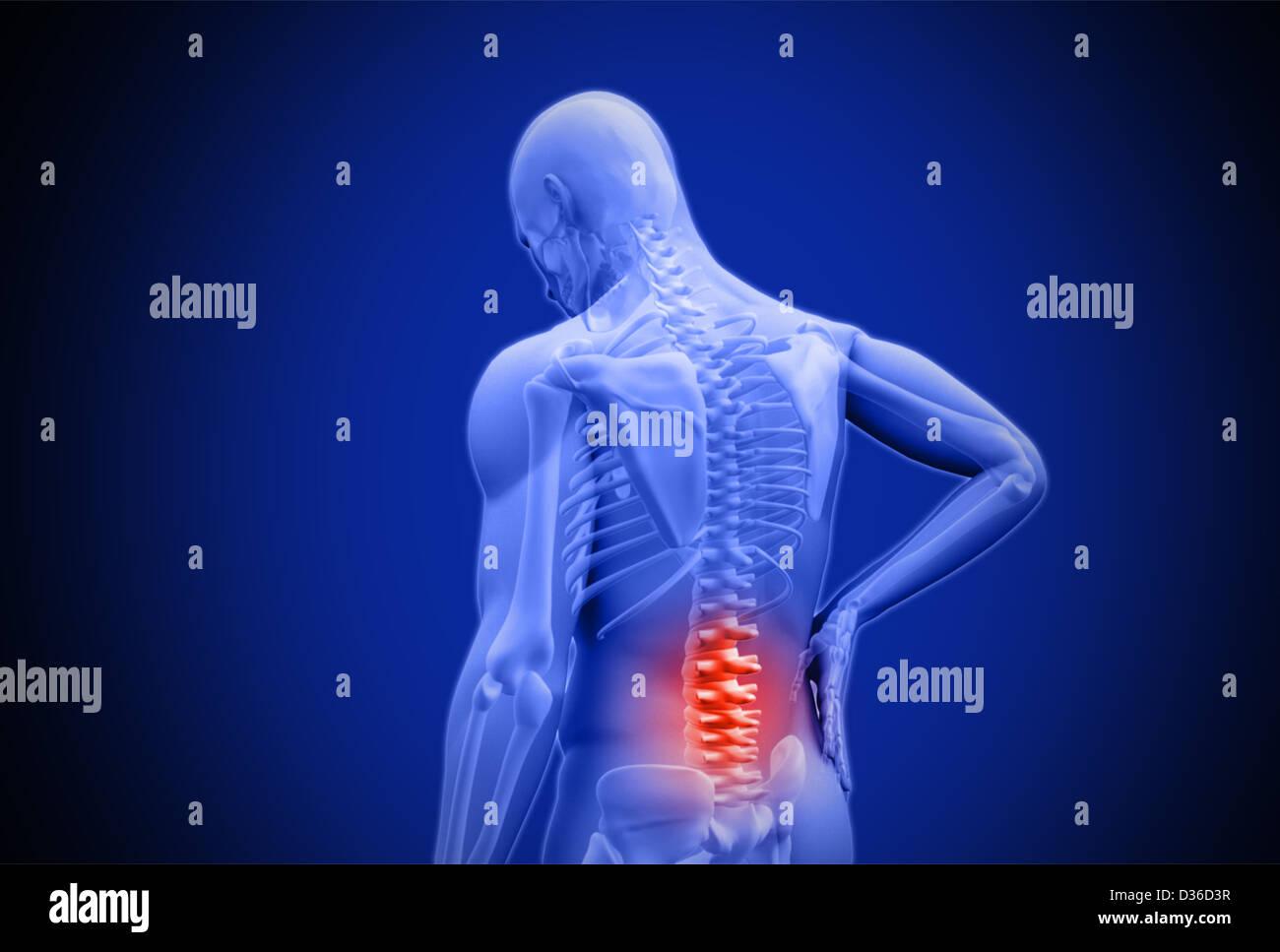 Tolle Schmerzen Im Unteren Rücken Anatomie Zeitgenössisch ...