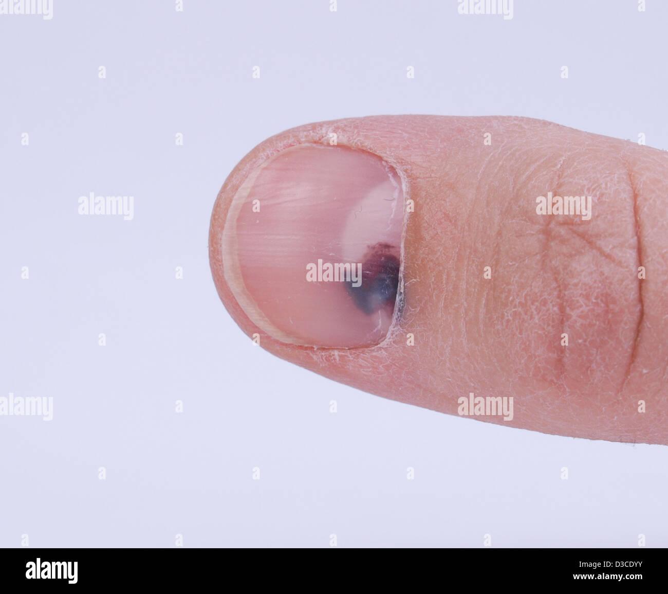 Dem zehennagel unter bluterguss Verdickte Zehennägel