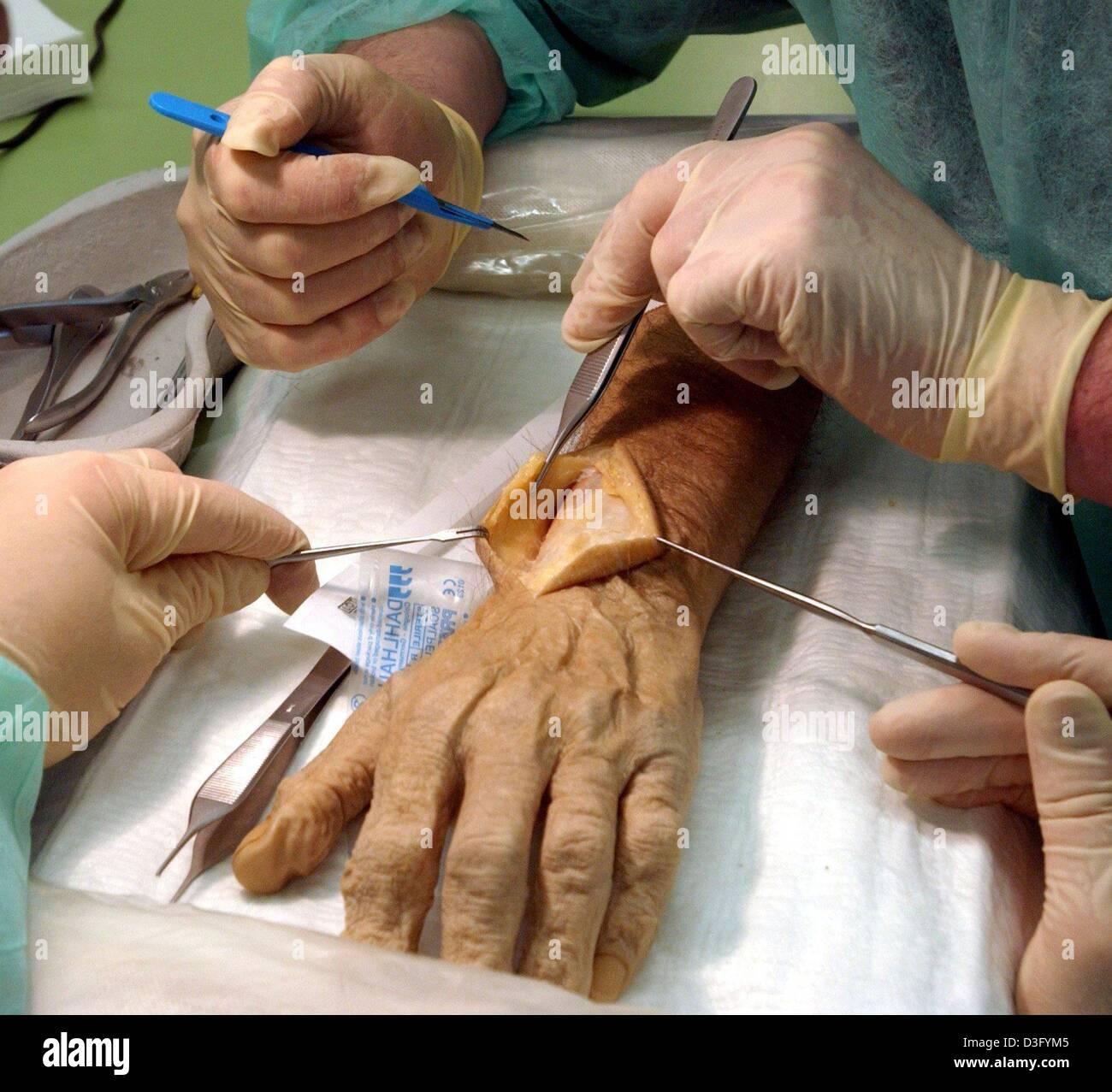 Dpa) - namhafte Hand Chirurgen üben die neuesten Techniken der ...