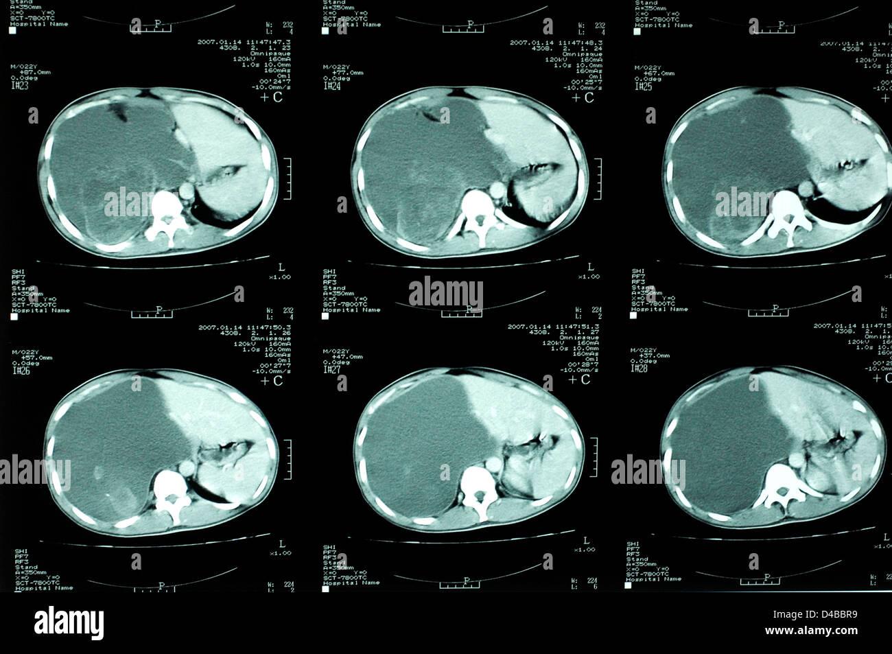 Radiologie. CT-Scan zeigt eine Blut-pooling auf der rechten Seite ...
