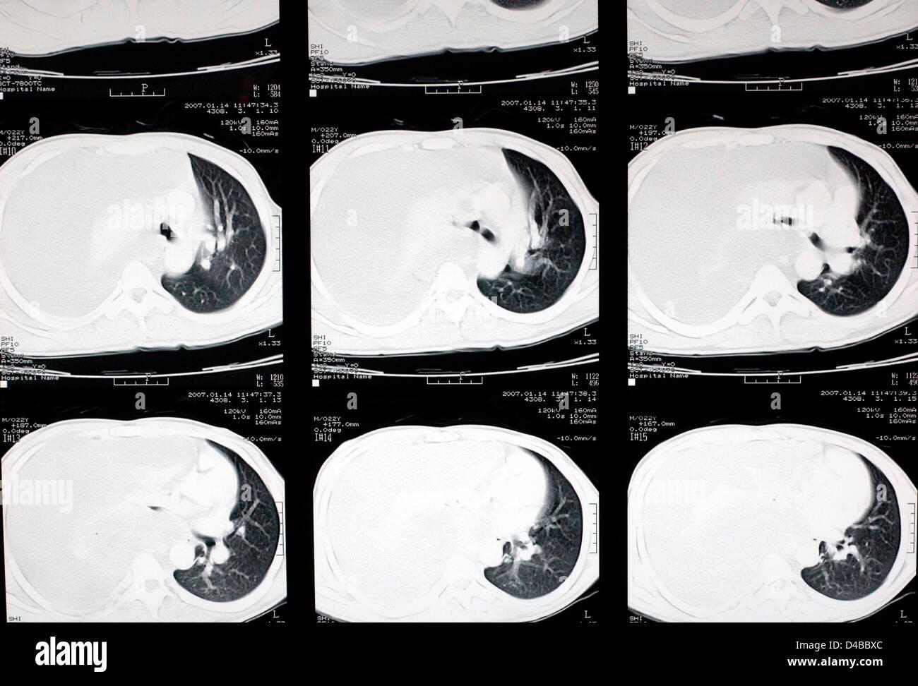Atemberaubend Ct Brust Anatomie Bilder - Anatomie Von Menschlichen ...