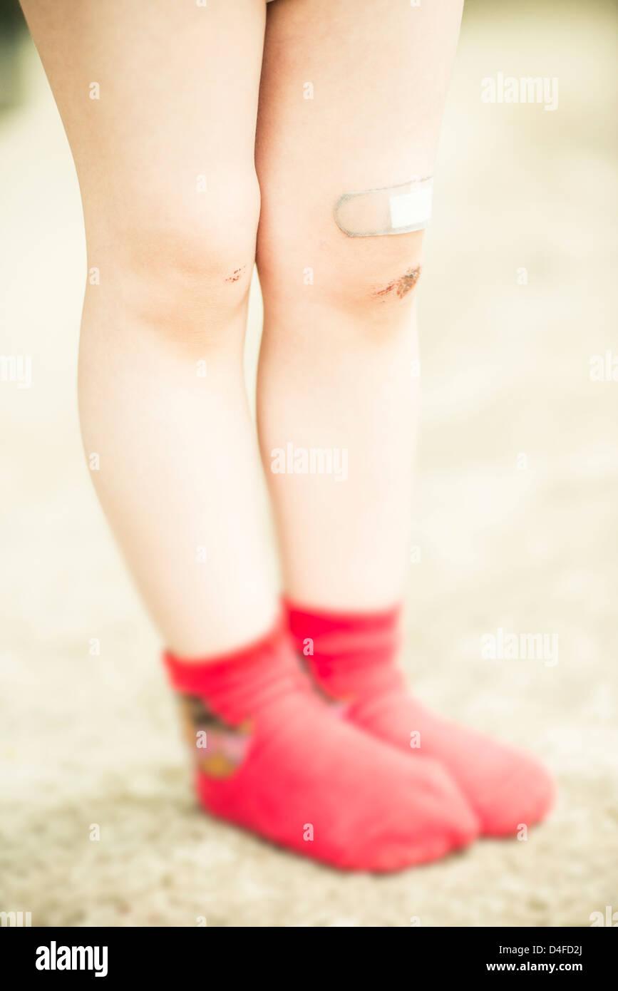 Mädchen 3 Jahre alt mit roten Socken und kratzen Wunden an den Beinen. Stockbild