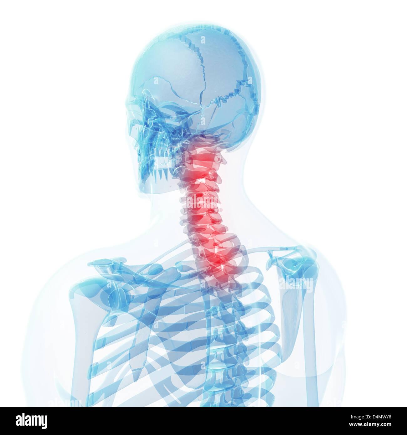 Berühmt Wirbelsäule X Ray Anatomie Bilder - Anatomie Ideen - finotti ...