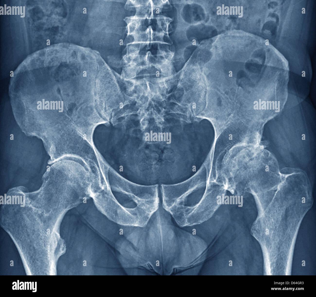 Arthrose der Hüfte, x-ray Stockbild
