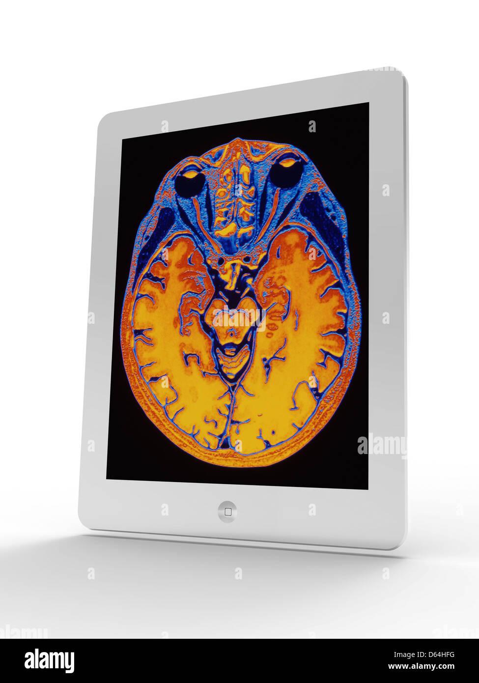 Tablet-Computer zeigen MRI Gehirn-scan Stockbild