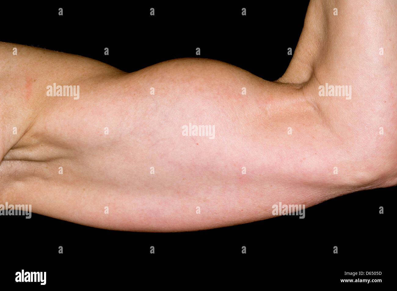 Biceps Tendon Stockfotos & Biceps Tendon Bilder - Alamy