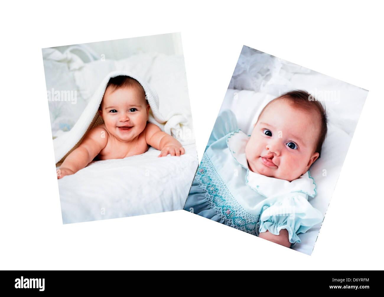 Bilder in einem Fotoalbum eines Babys, die für eine Lippenspalte operiert. Stockbild