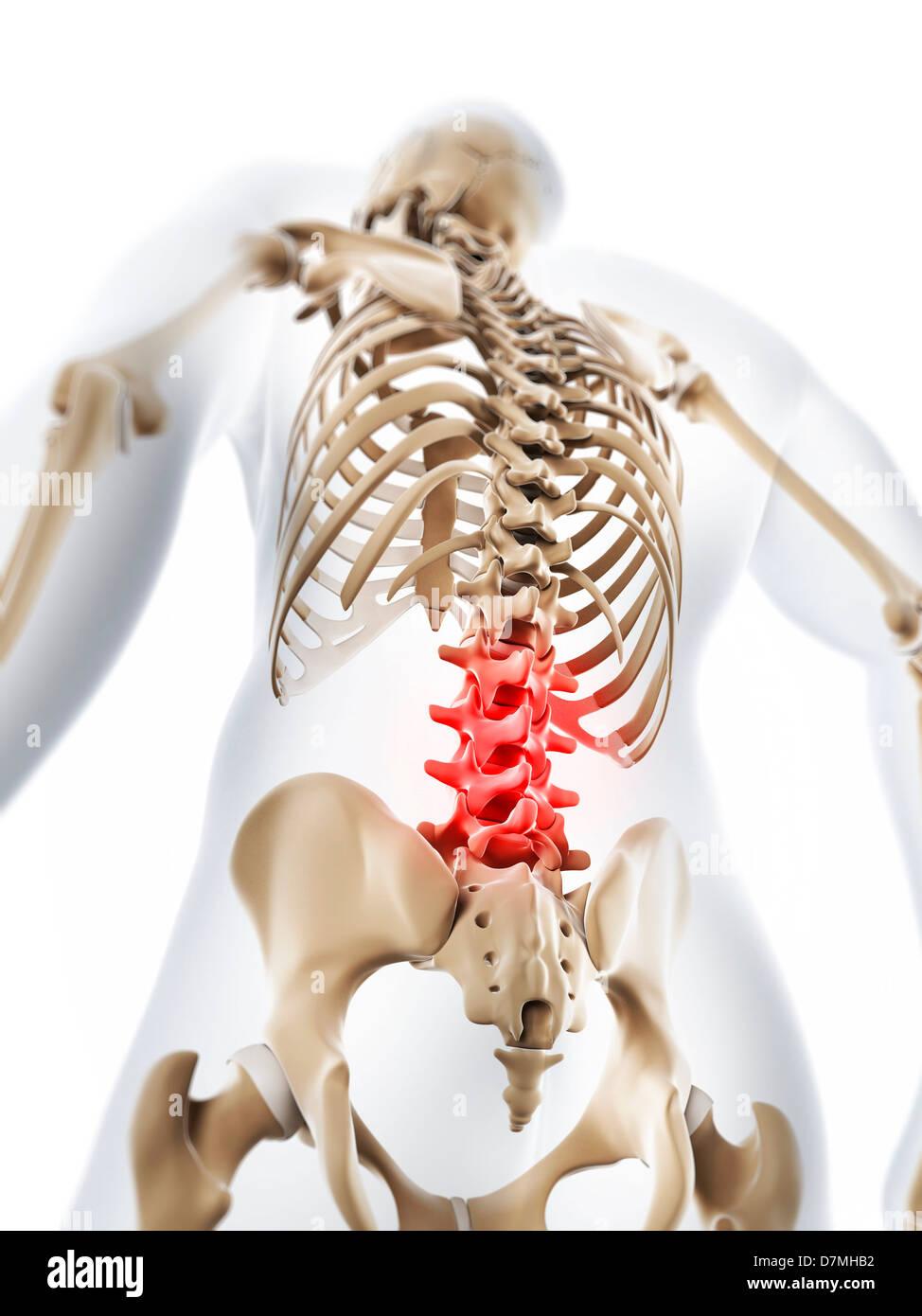 Wunderbar Schmerzen Im Unteren Rücken Anatomie Fotos - Physiologie ...