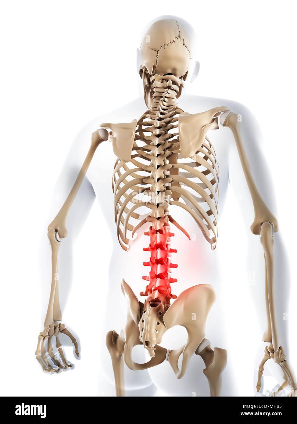 Schmerzen im unteren Rücken, konzeptuellen Kunstwerk Stockfoto