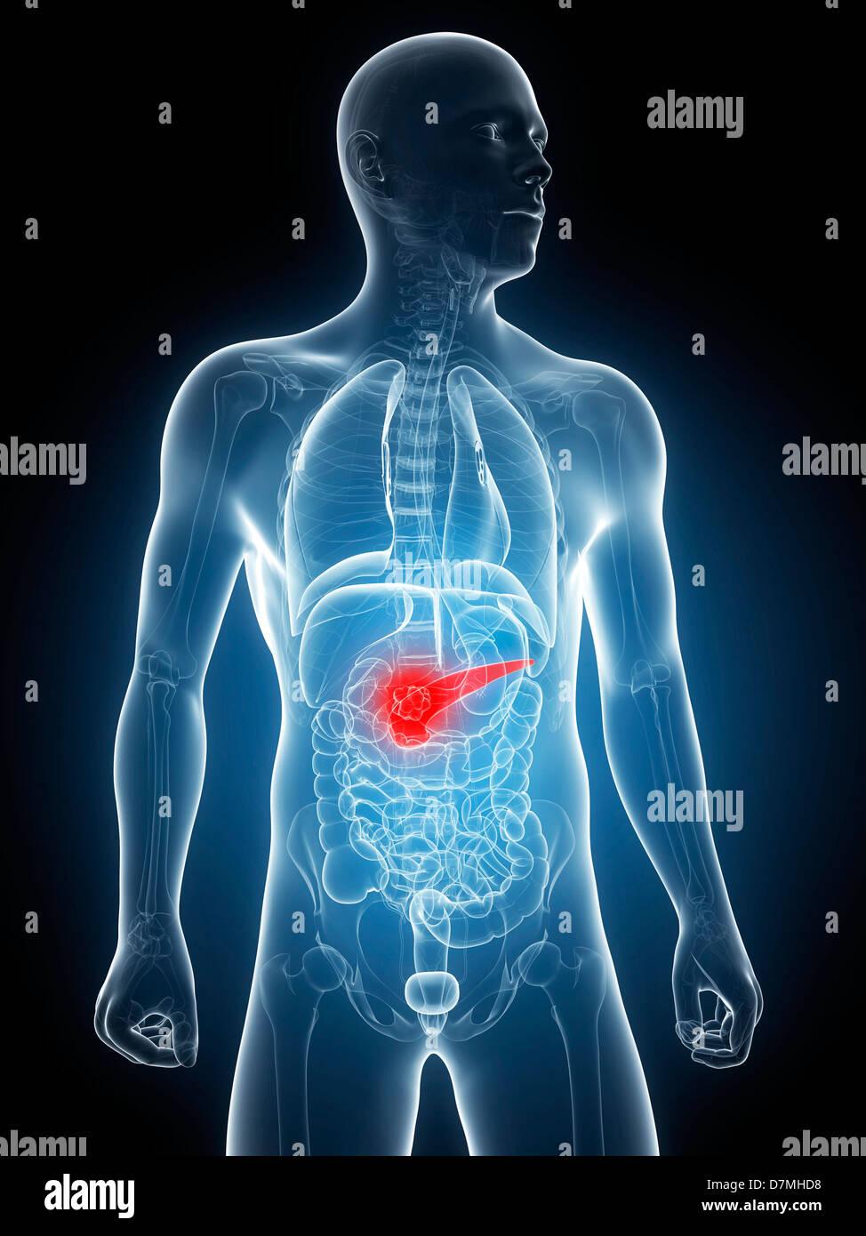 Pancreas Cancer Stockfotos & Pancreas Cancer Bilder - Alamy