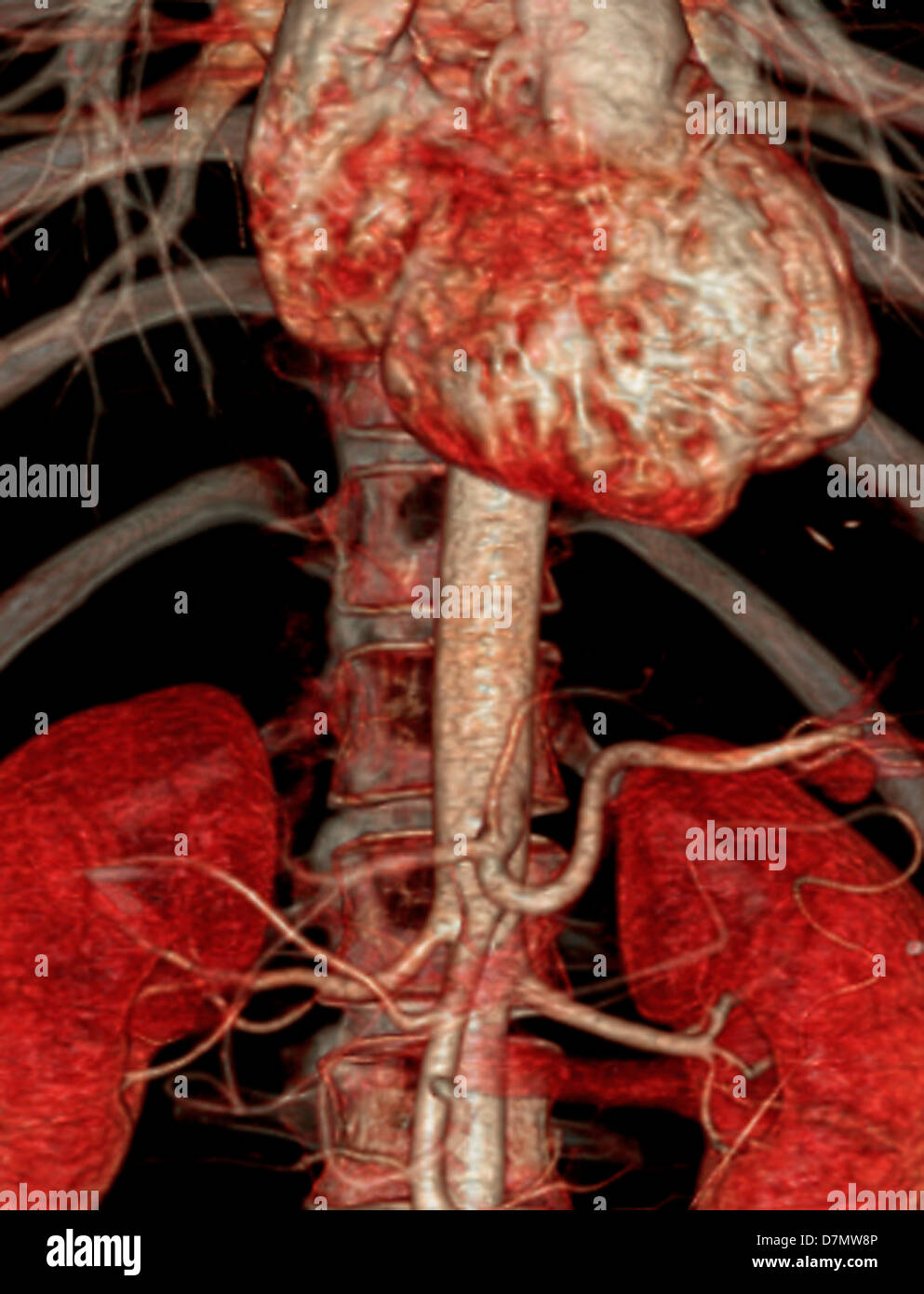 Bauchaorta, 3D CT-scan Stockfoto, Bild: 56392582 - Alamy