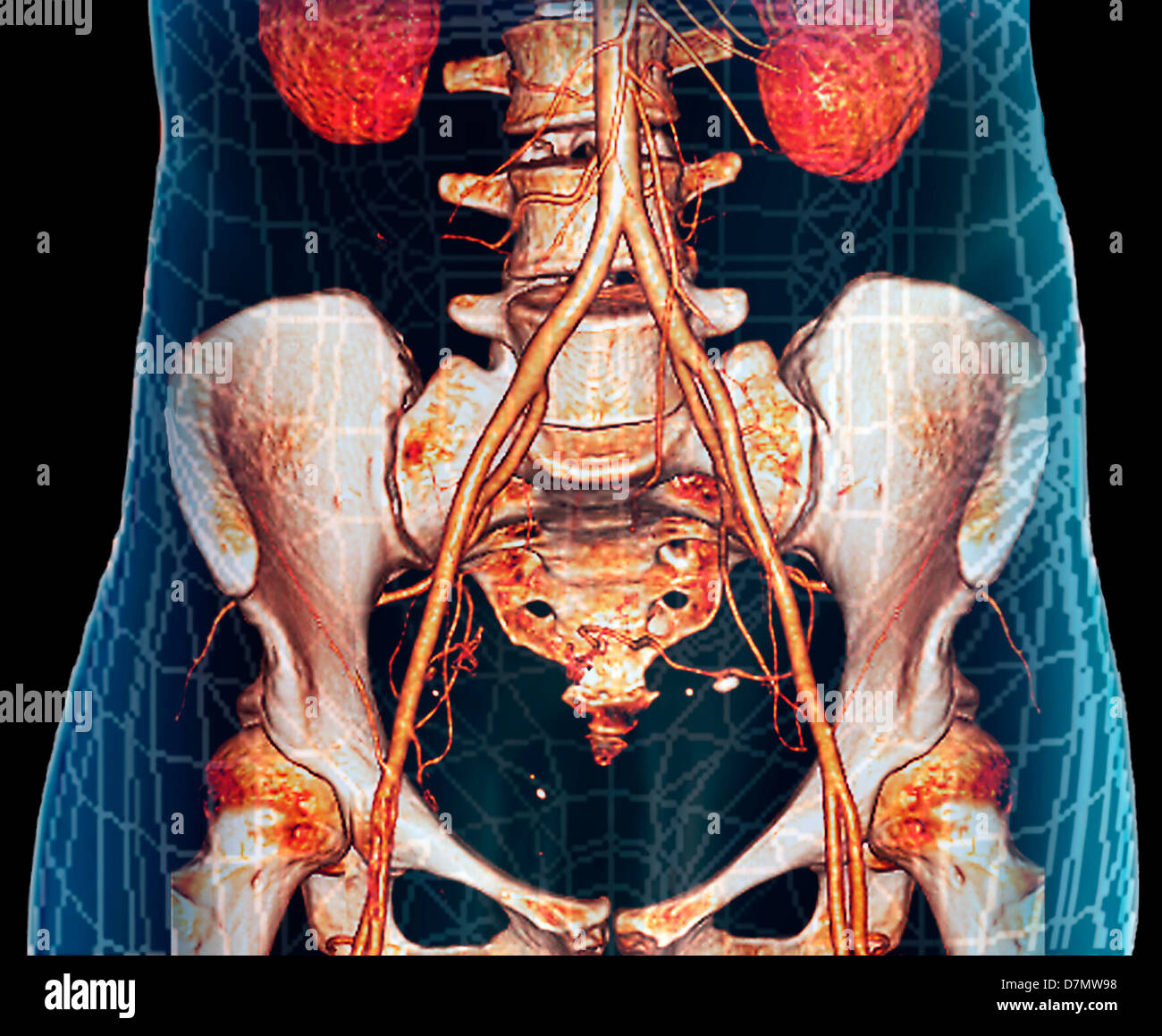 3d Ct Scan Stockfotos & 3d Ct Scan Bilder - Alamy