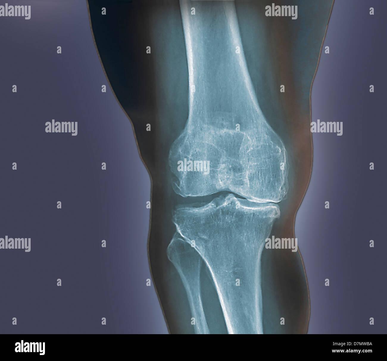 Arthritis des Knies, x-ray Stockbild