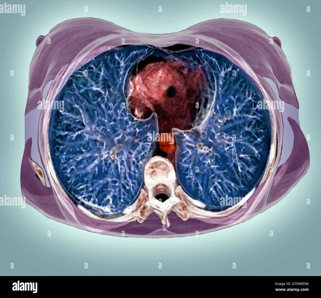 Chest Ct Scan Stockfotos & Chest Ct Scan Bilder - Alamy