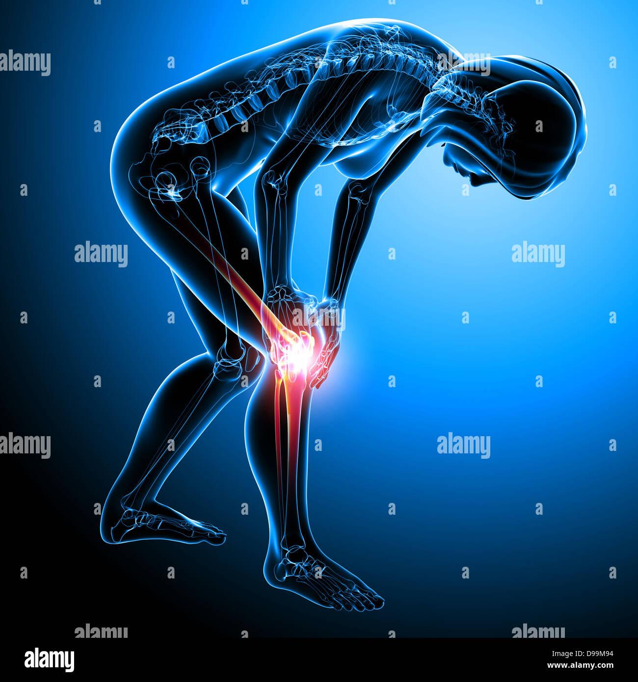 Anatomie der menschlichen Knie Schmerzen Stockfoto, Bild: 57376512 ...