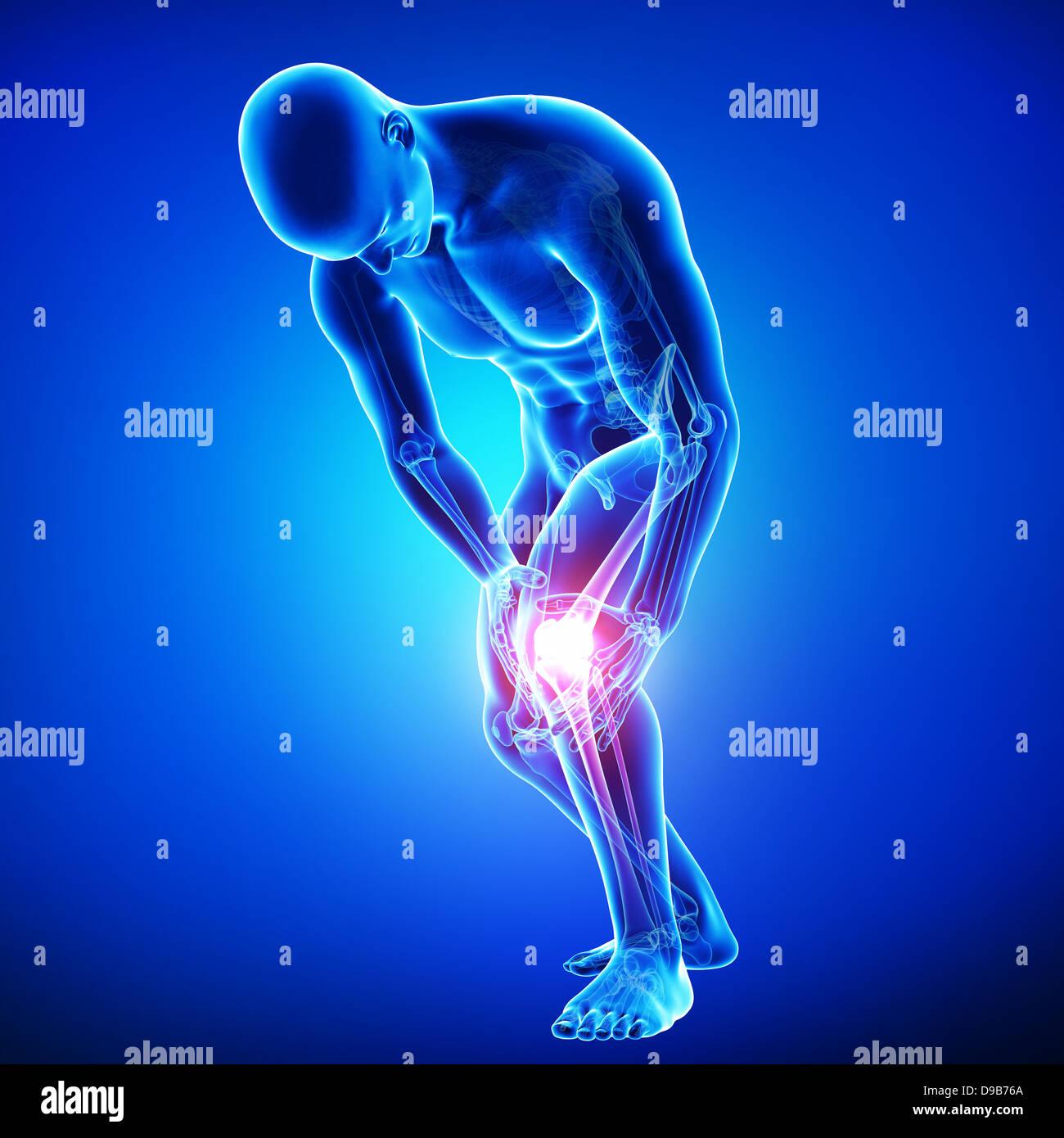 Anatomie der menschlichen Knie Schmerzen Stockfoto, Bild: 57410146 ...