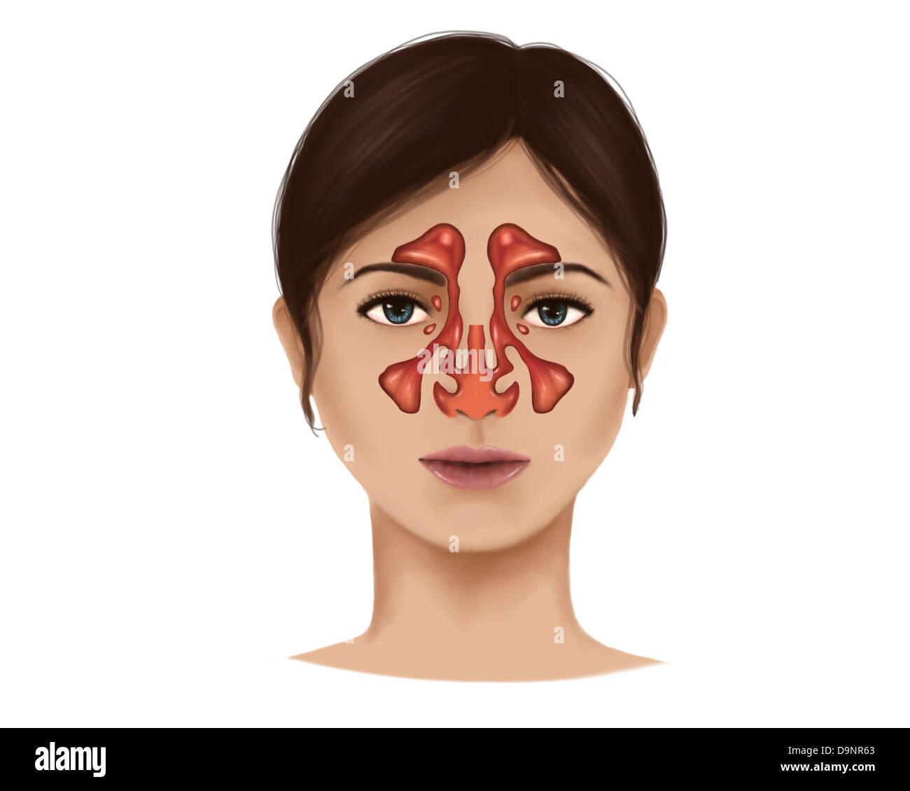 Anatomie der Nasennebenhöhlen Stockfoto, Bild: 57642203 - Alamy