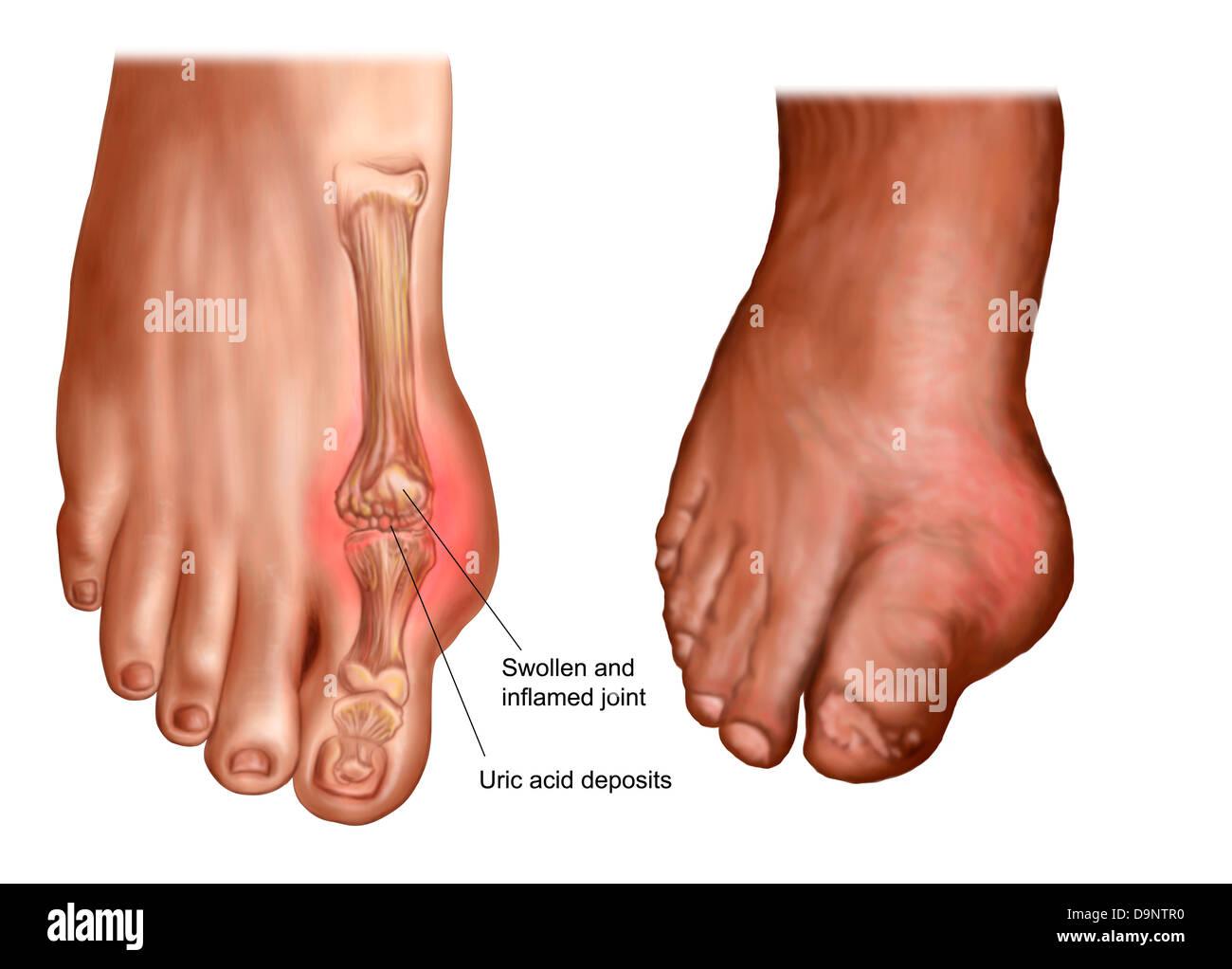 Anatomie von einem geschwollenen Fuß Stockfoto, Bild: 57643460 - Alamy