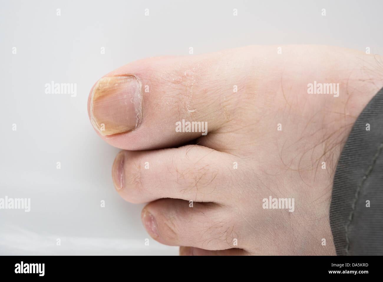 Onychomycosis Stockfotos & Onychomycosis Bilder - Alamy