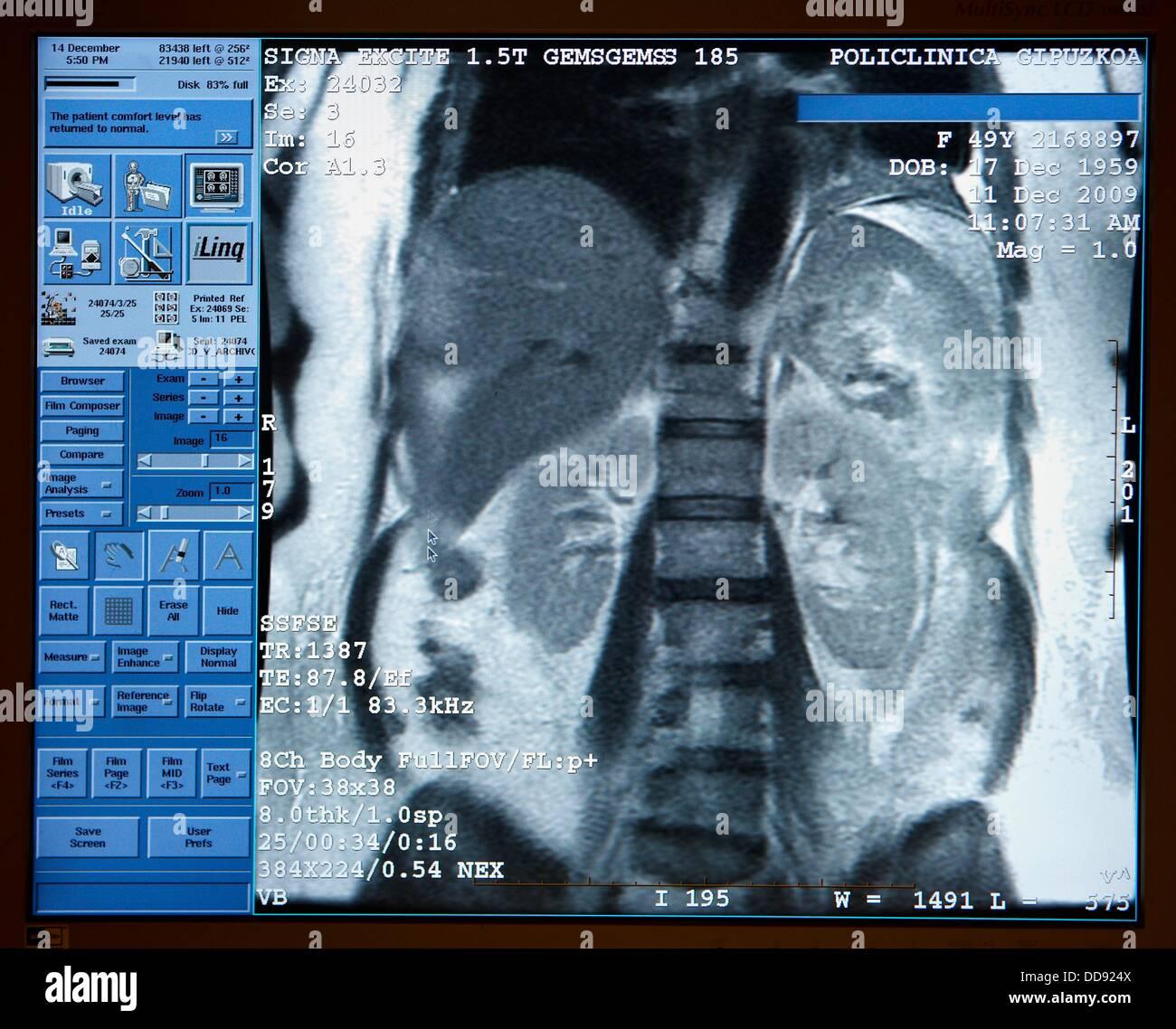 Abdomen: Leber, Milz, Nieren und Wirbelsäule, MRI (Magnetic ...