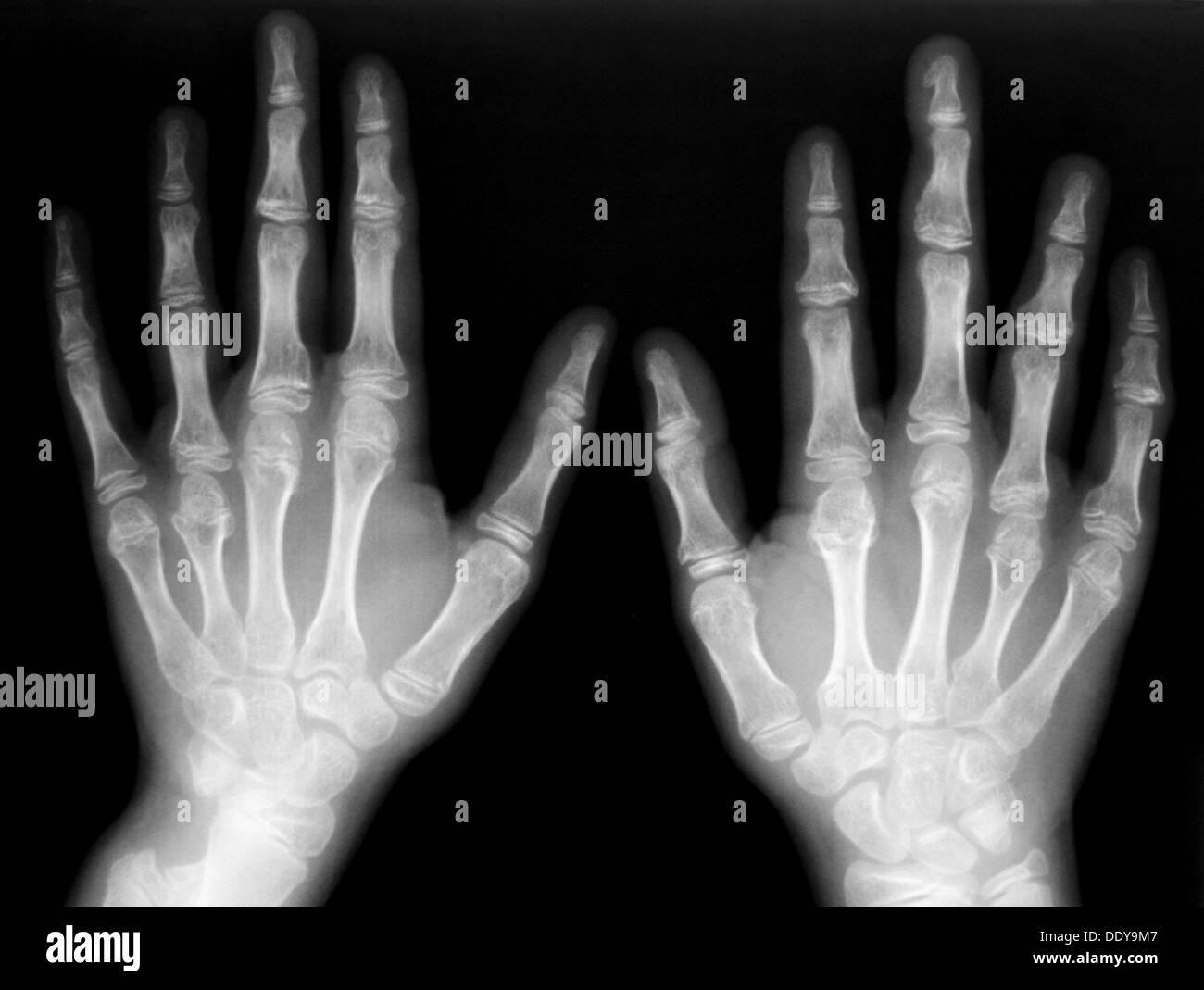 Hand-Bones Röntgen Stockfoto, Bild: 60221959 - Alamy