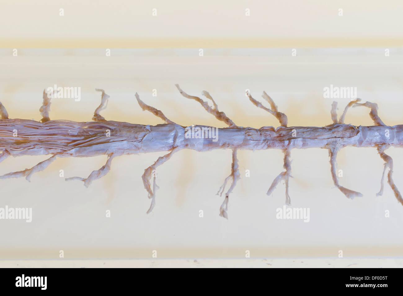 Plastination Exemplar des Rückenmarks Stockfoto, Bild: 60861300 - Alamy