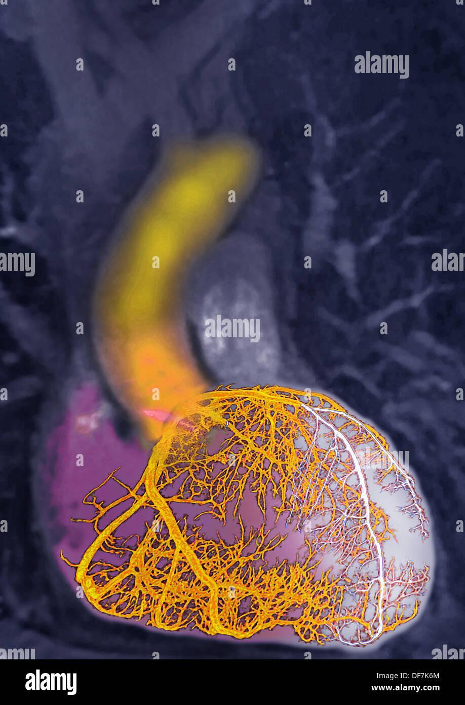 Myocardial Infarction Stockfotos & Myocardial Infarction Bilder - Alamy