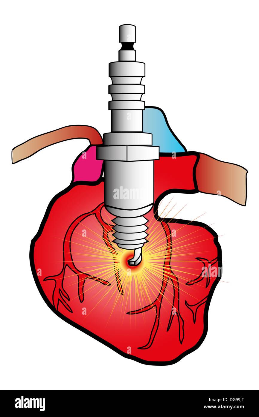 Abbildung eines Herzens in der kardiovaskulären Chirurgie Schneiden ...
