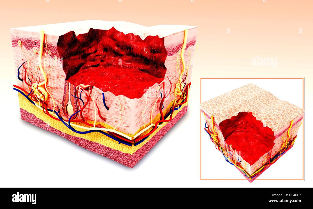 Anatomie der menschlichen Haut, artwork Stockfoto, Bild: 65246447 ...