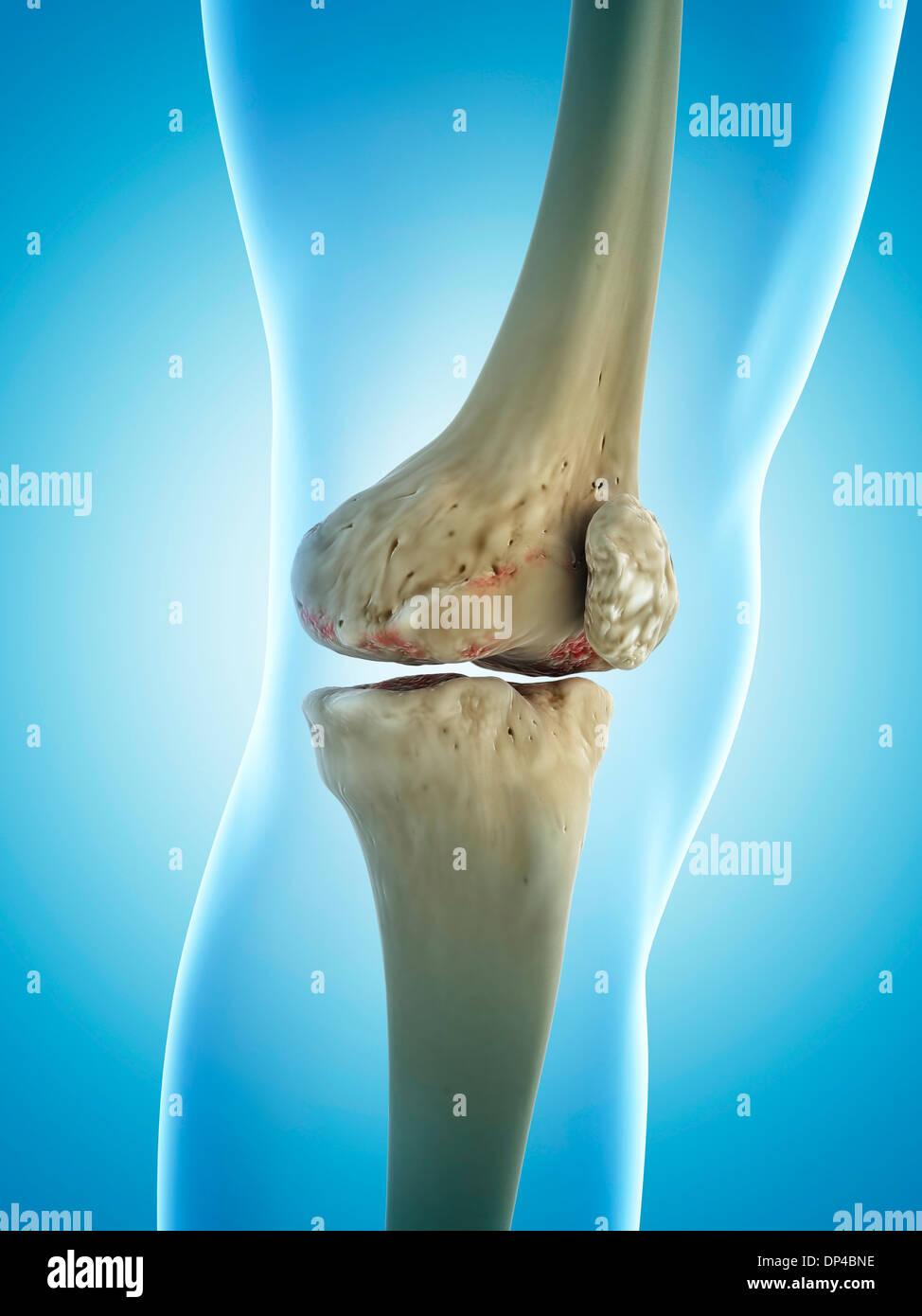 Arthritic Knee Joint Stockfotos & Arthritic Knee Joint Bilder - Alamy