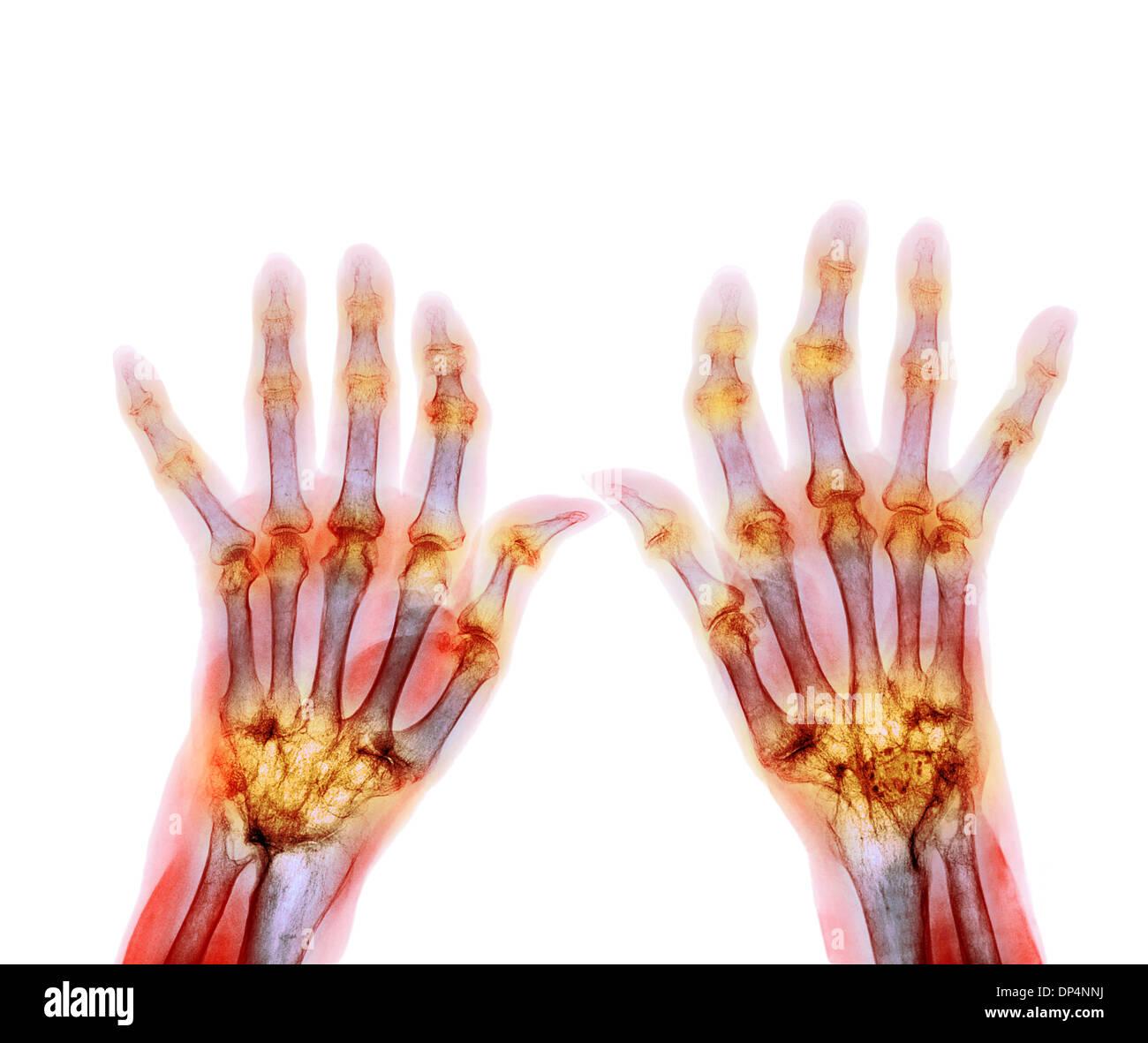 Rheumatoide Arthritis, x-ray Stockbild