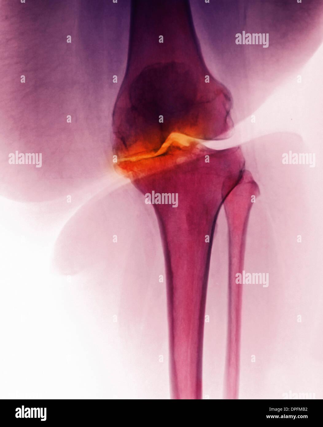 Röntgen des Knies mit Arthrose Stockbild