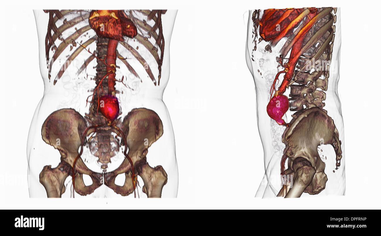 Abdominal Aortic Aneurysm Stockfotos & Abdominal Aortic Aneurysm ...