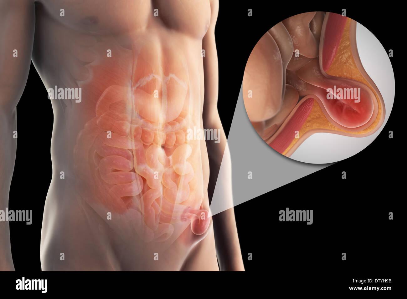 Beste Anatomie Und Physiologie Der Hernie Fotos - Menschliche ...